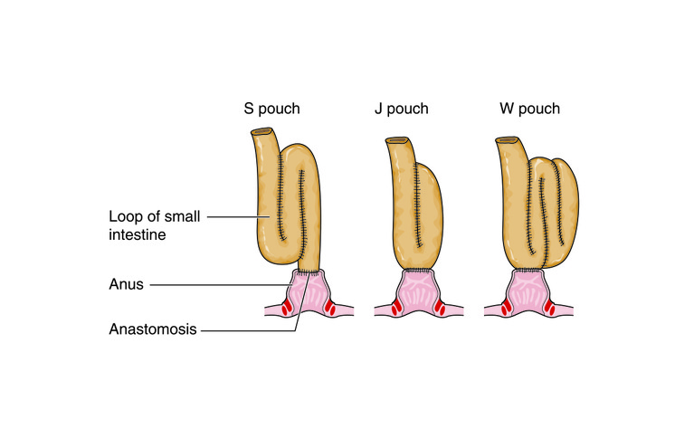 Restorative proctocolectomy with ileoanal pouch (or J-pouch)