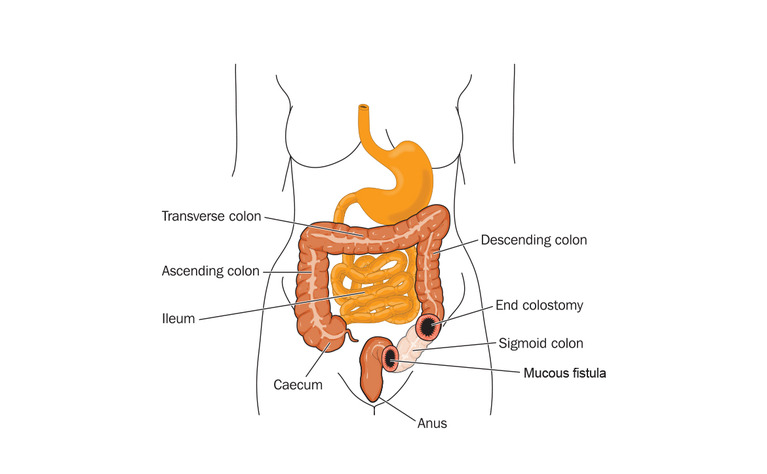 Colon with an end colostomy and mucous fistula