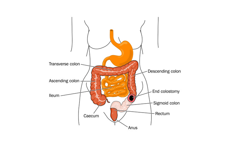 Colectomy with colostomy surgery for inflammatory bowel disease (IBD) - Crohn's disease and ulcerati