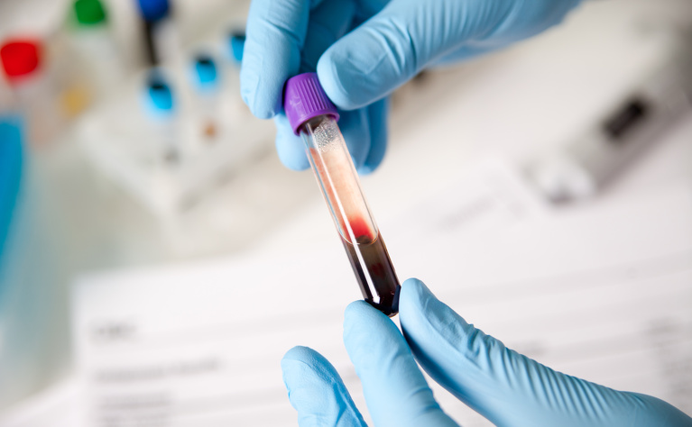 Blood tests for Crohn's disease and UC | IBDrelief