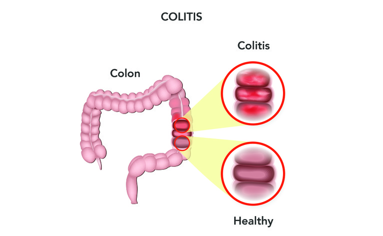 Difference between healthy colon and colon with ulcerative colitis