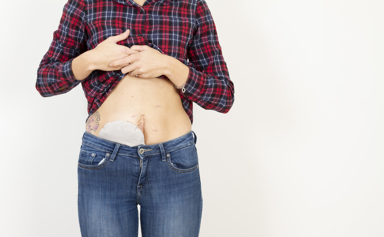 Ostomy bag showing above jeans