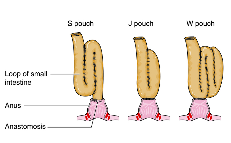 J-pouch surgery for ulcerative colitis