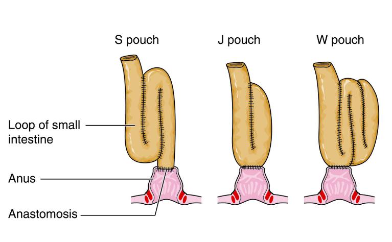 J-pouch surgery for ulcerative colitis