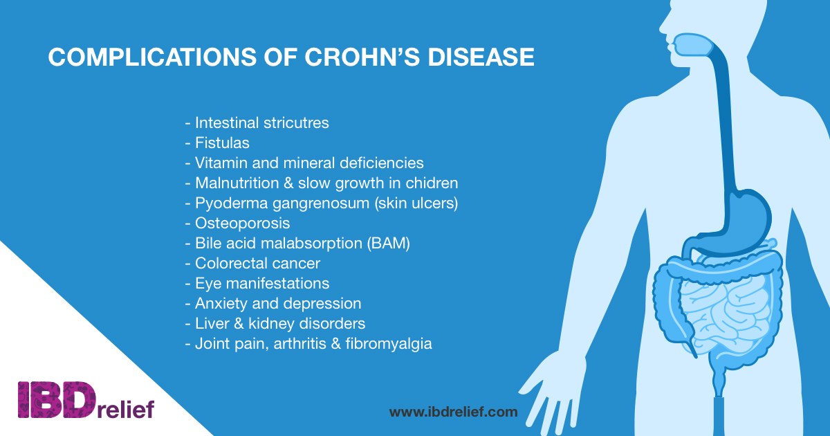 can crohns movement reefer pain