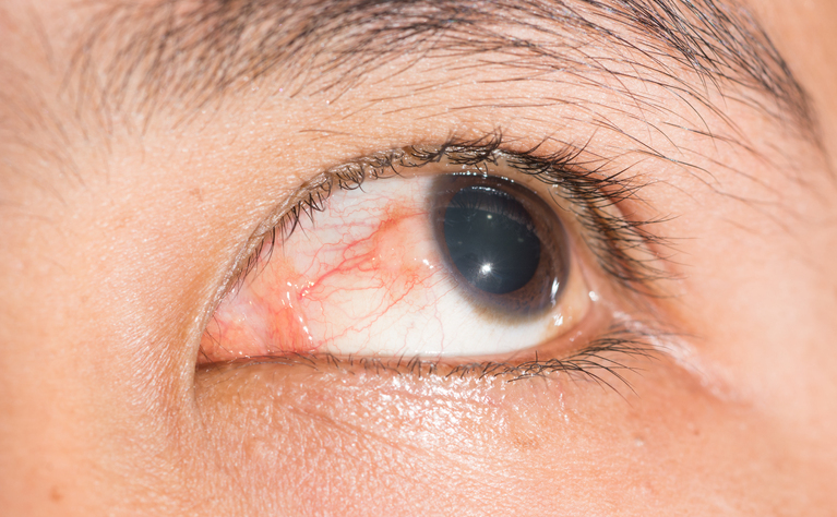 7a528ee84e8 Eye problems and IBD  Episcleritis in Crohn s disease and ulcerative colitis