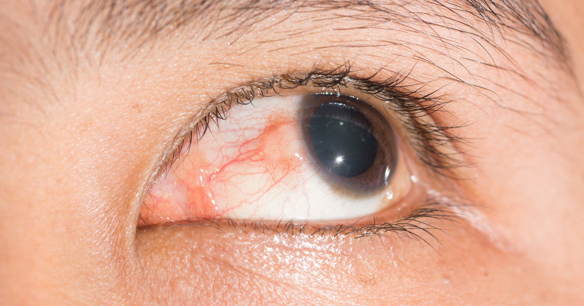 episcleritis eye problems in crohn s colitis