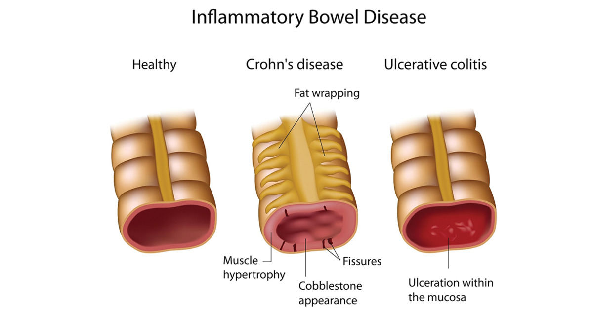 bowel anal syndrome inflammatory itch