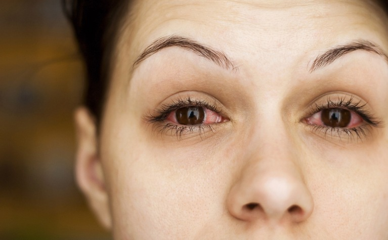 eye problems in ibd ibd relief