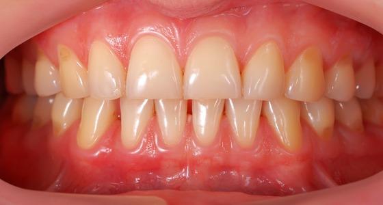 Teeth And Ibd