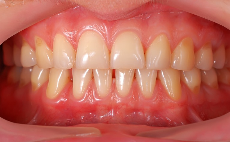 Teeth And Ibd