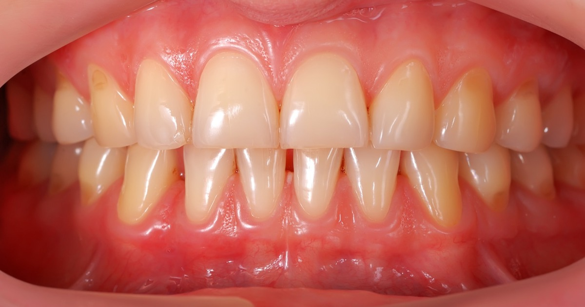 Gingivitis and periodontitis - Introduction