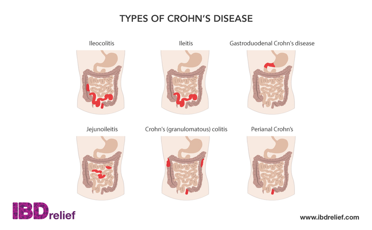 the main characteristics of the crohns disease What is crohn's disease crohn's disease is a chronic disease that causes inflammation and irritation in your digestive tract most commonly, crohn's affects.