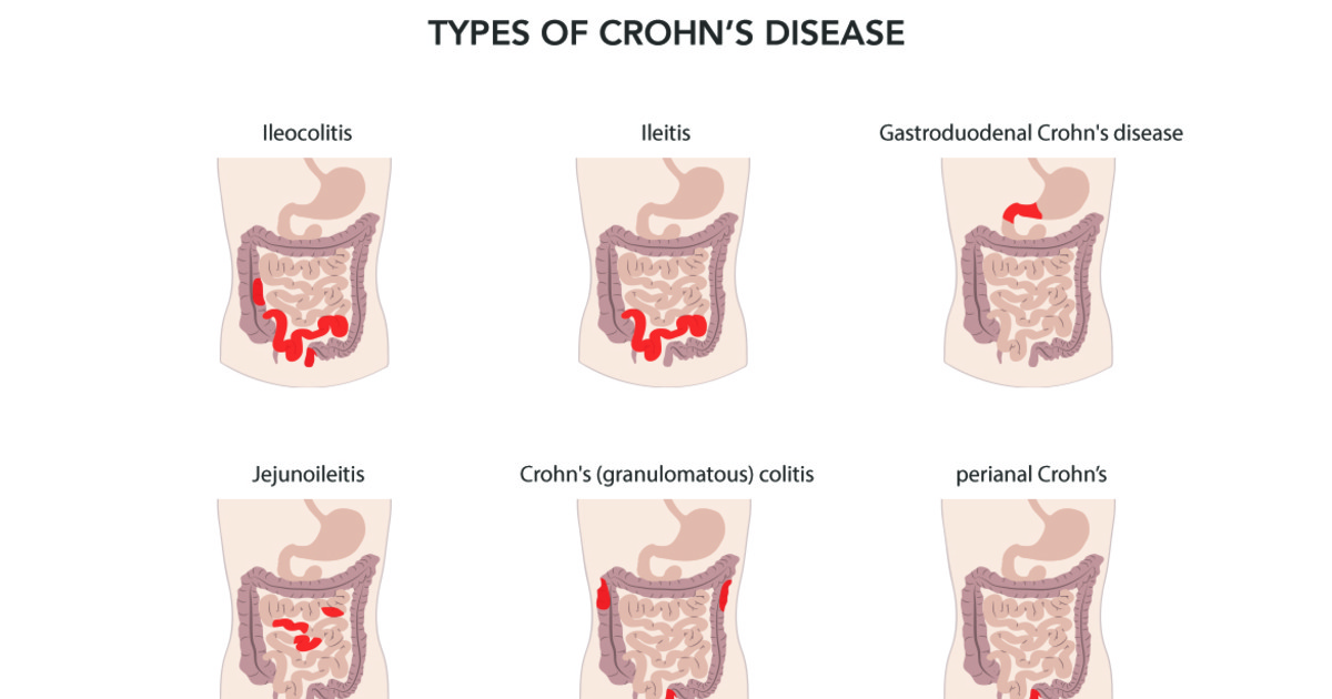 chrons disease Crohn's disease is one of a few conditions that are associated with inflammatory bowel diseases crohn's disease can cause inflammation along the gastrointestinal tract, usually at the end of the small bowel and on into the opening of the colon, often affecting the thickness of the walls of the bowels.