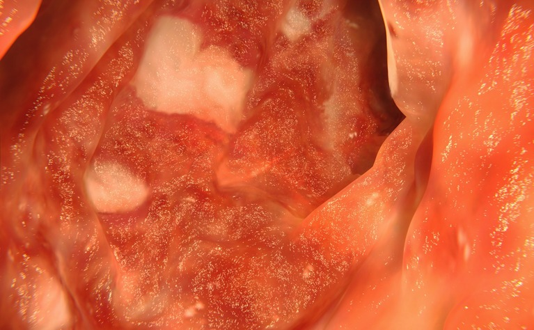 Internal image of colon with ulcerative colitis