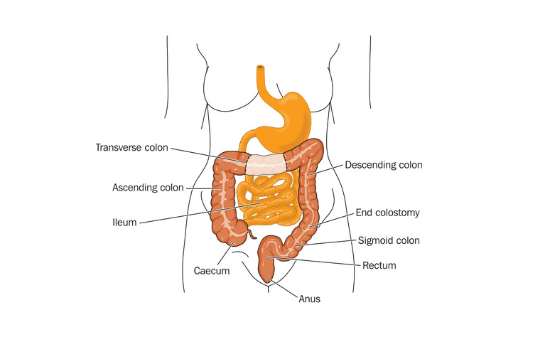 Colectomy Surgery For Ibd Ibdrelief