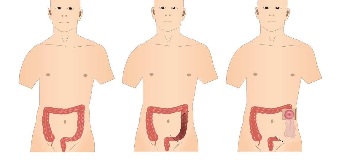 Colostomy surgery for inflammatory bowel disease (IBD) - Crohn's disease and ulcerative colitis (UC)