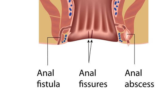 Surgery complications fissure anal