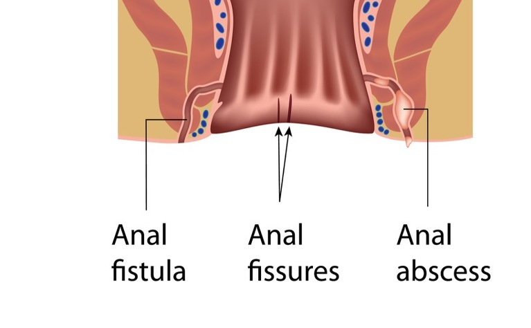 Anal fistulas and crohns disease yes love