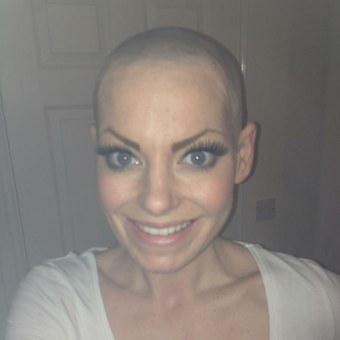 Gemma took control of her hair loss and shaved her head