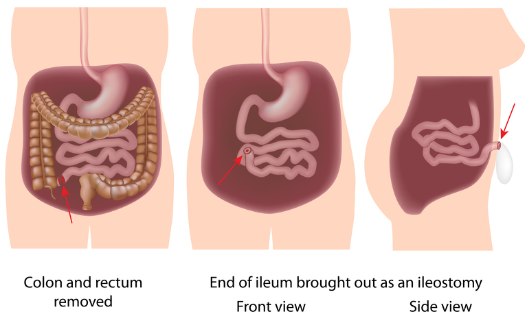 Proctocolectomy with ileostomy for inflammatory bowel disease - Crohn's disease and ulcerative colit