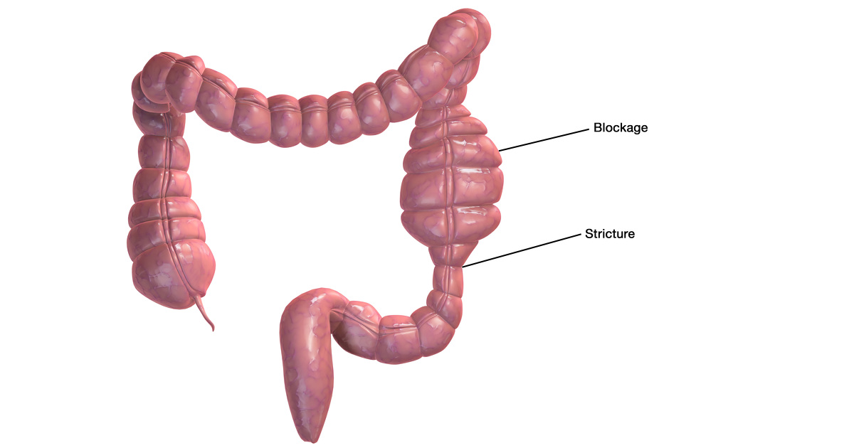 intestinal strictures in crohn's disease | ibdrelief, Skeleton