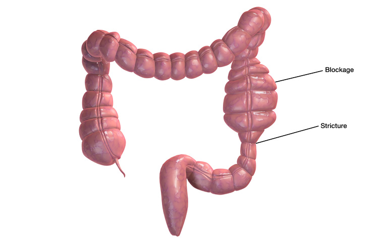 Intestinal Strictures In Crohns Disease Ibdrelief