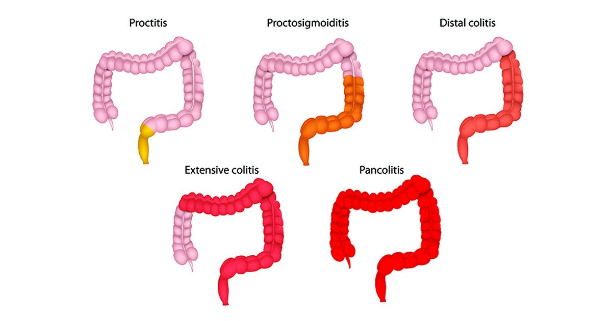 ulcerative proctitis | ulcerative colitis | ibdrelief, Skeleton